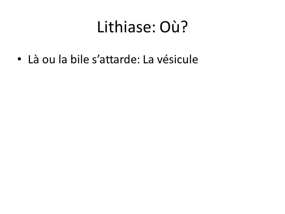 Lithiase: Où Là ou la bile s'attarde: La vésicule