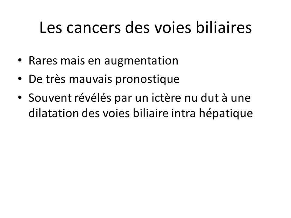 Les cancers des voies biliaires