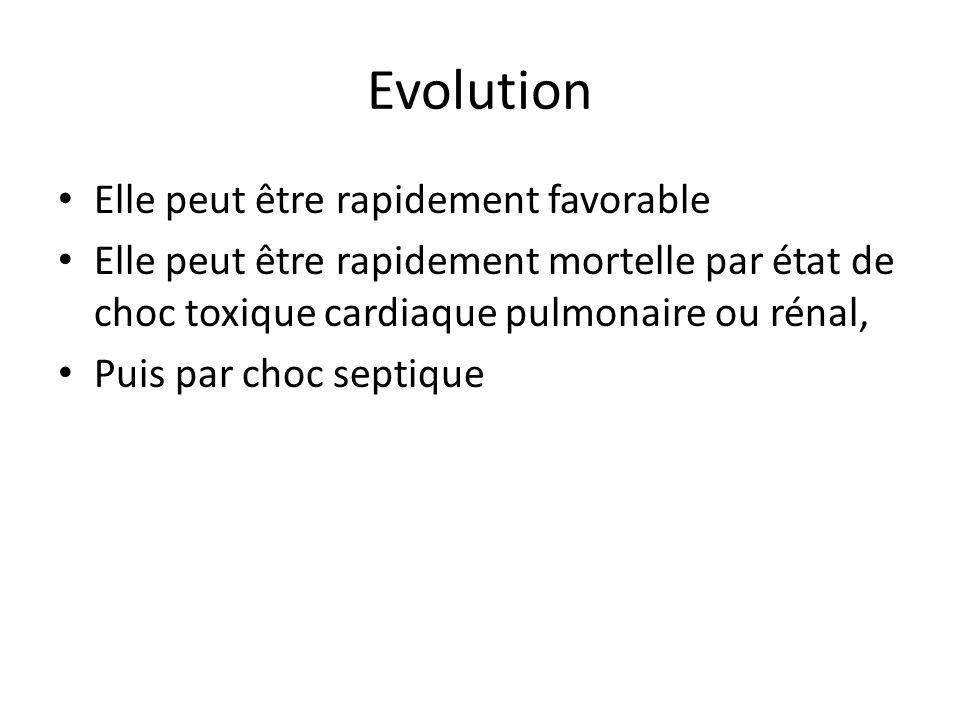 Evolution Elle peut être rapidement favorable
