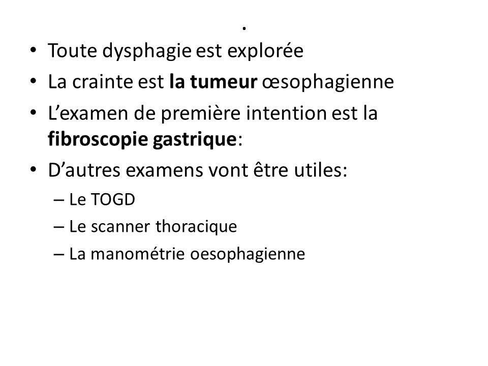. Toute dysphagie est explorée La crainte est la tumeur œsophagienne