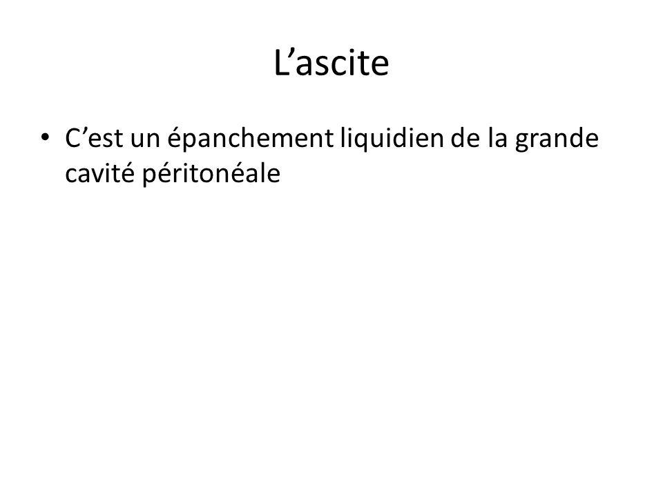 L'ascite C'est un épanchement liquidien de la grande cavité péritonéale