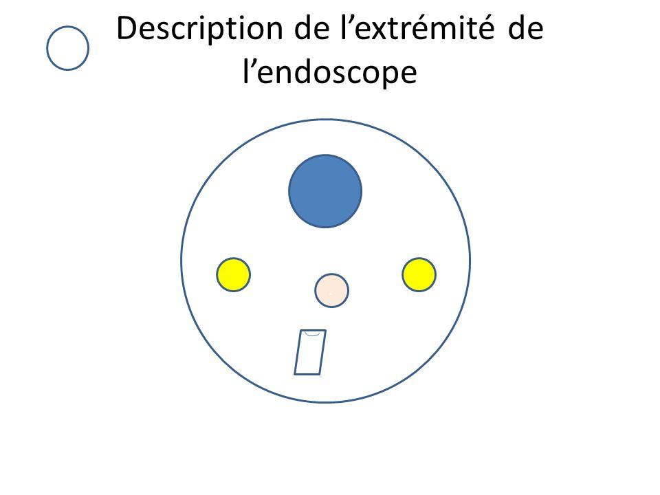Description de l'extrémité de l'endoscope