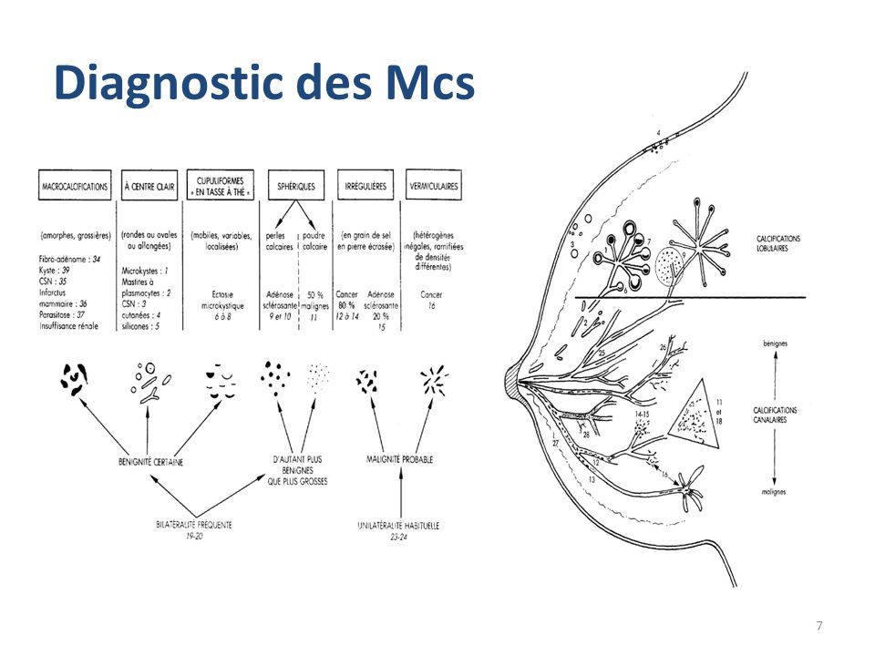 Diagnostic des Mcs