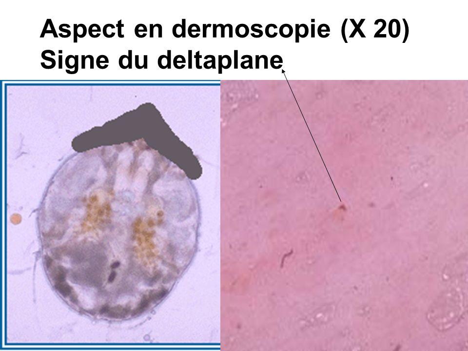 Aspect en dermoscopie (X 20)