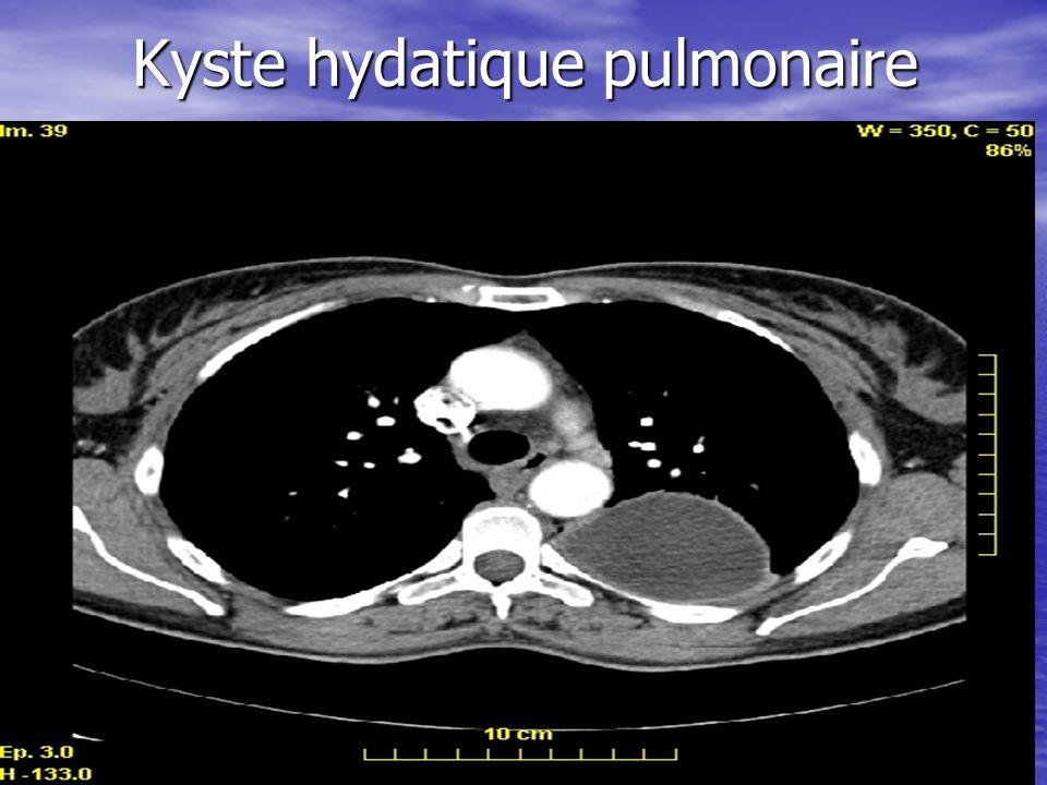 Kyste hydatique pulmonaire