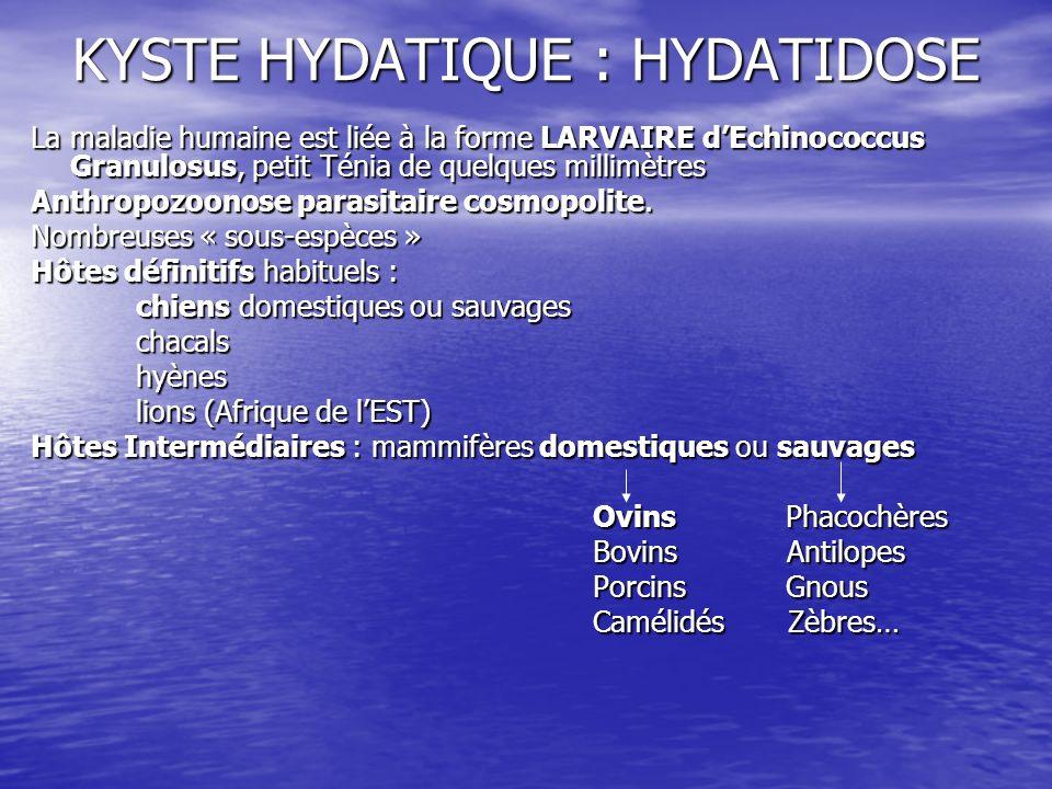 KYSTE HYDATIQUE : HYDATIDOSE