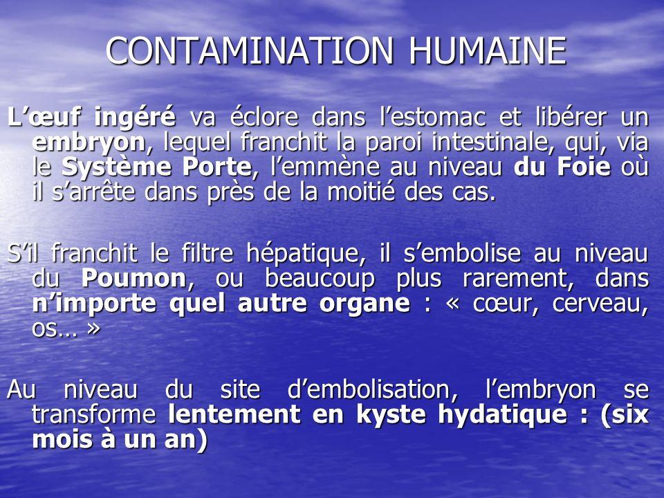 CONTAMINATION HUMAINE