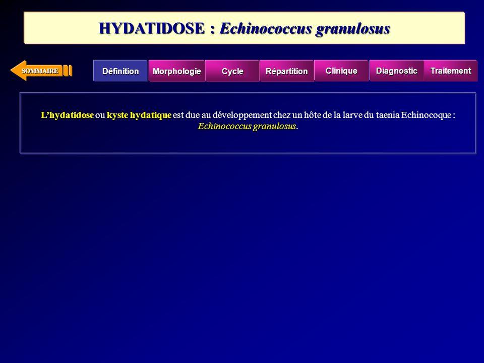 HYDATIDOSE : Echinococcus granulosus