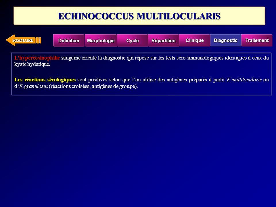 ECHINOCOCCUS MULTILOCULARIS