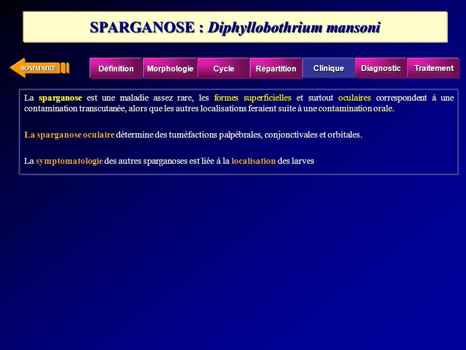 SPARGANOSE : Diphyllobothrium mansoni