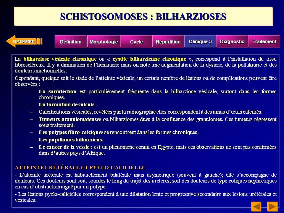 SCHISTOSOMOSES : BILHARZIOSES