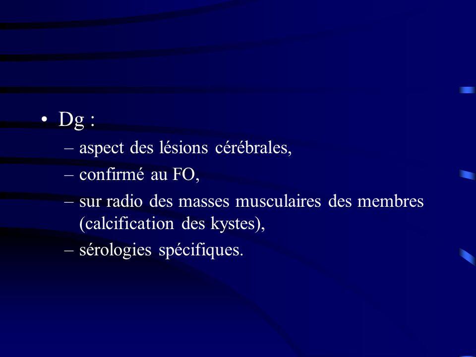 Dg : aspect des lésions cérébrales, confirmé au FO,