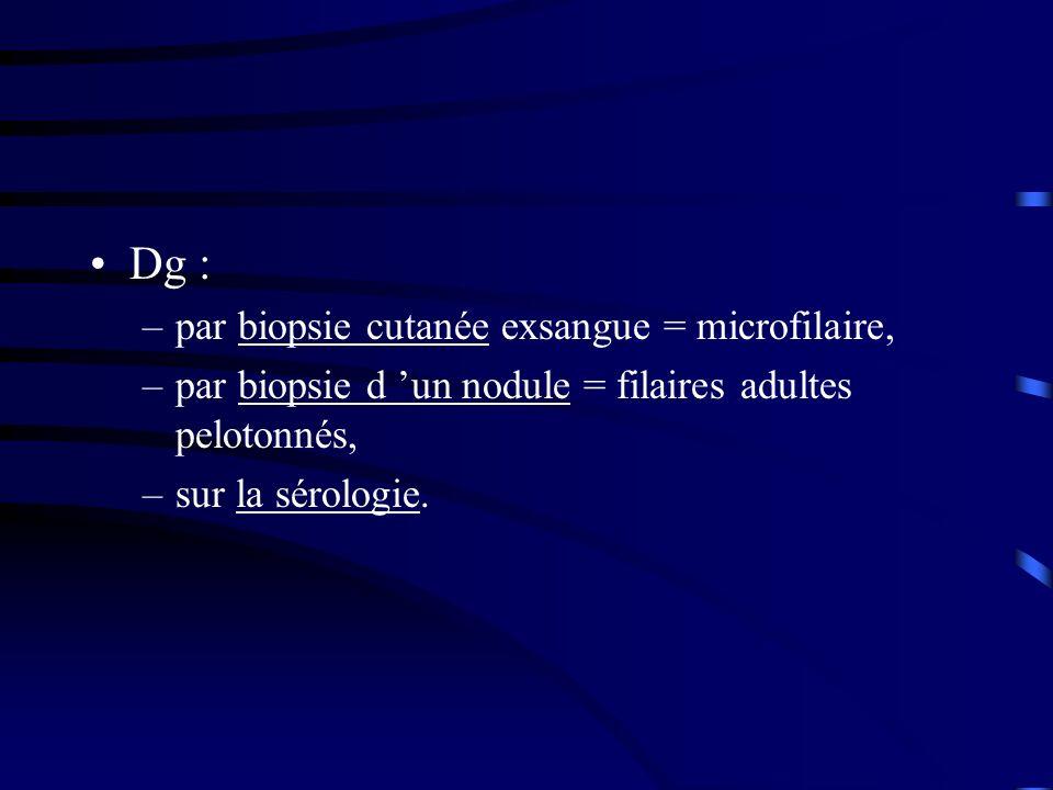 Dg : par biopsie cutanée exsangue = microfilaire,