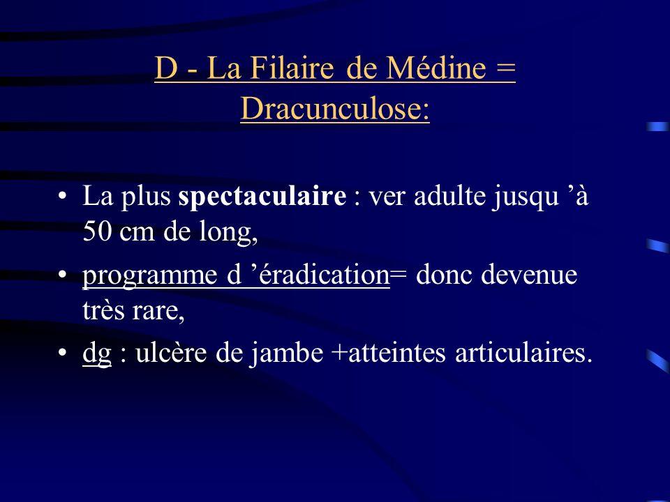 D - La Filaire de Médine = Dracunculose: