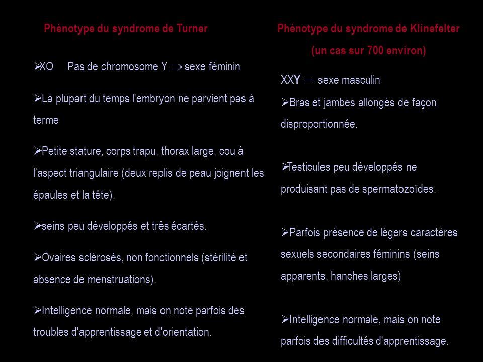 Phénotype du syndrome de Turner