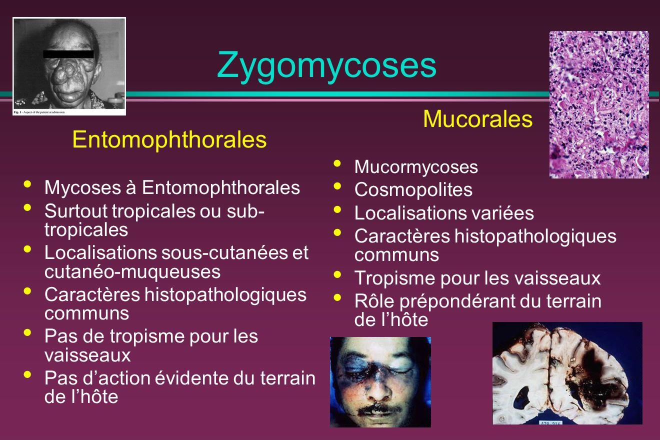 Zygomycoses Mucorales Entomophthorales Cosmopolites