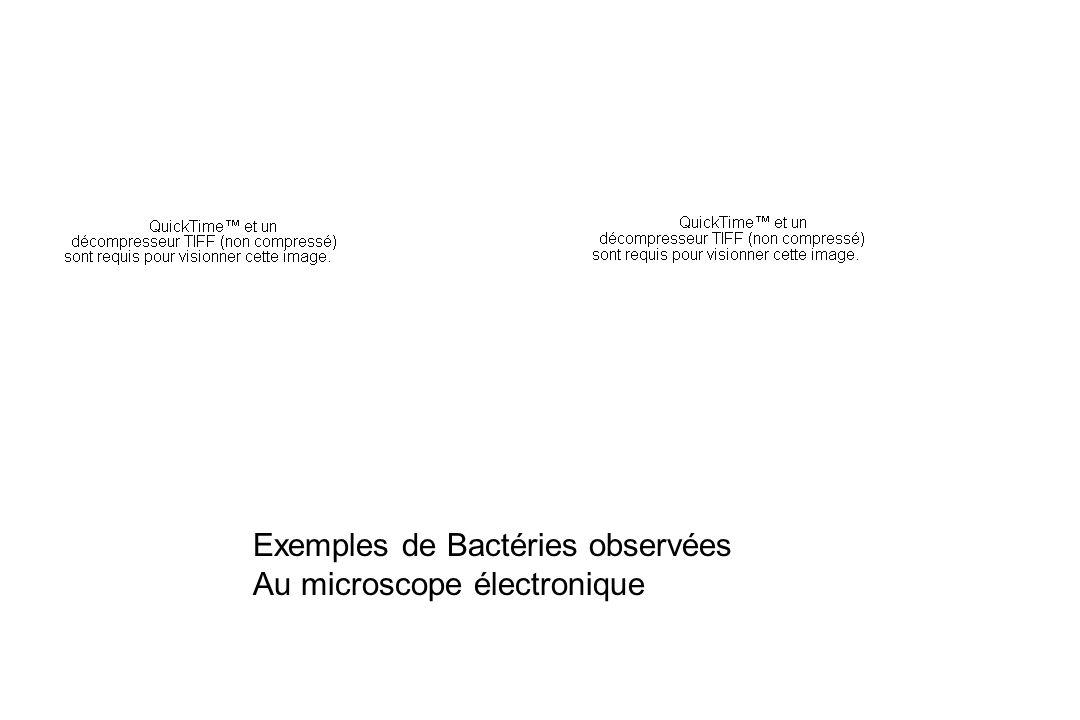 Exemples de Bactéries observées