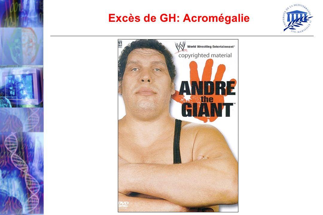Excès de GH: Acromégalie