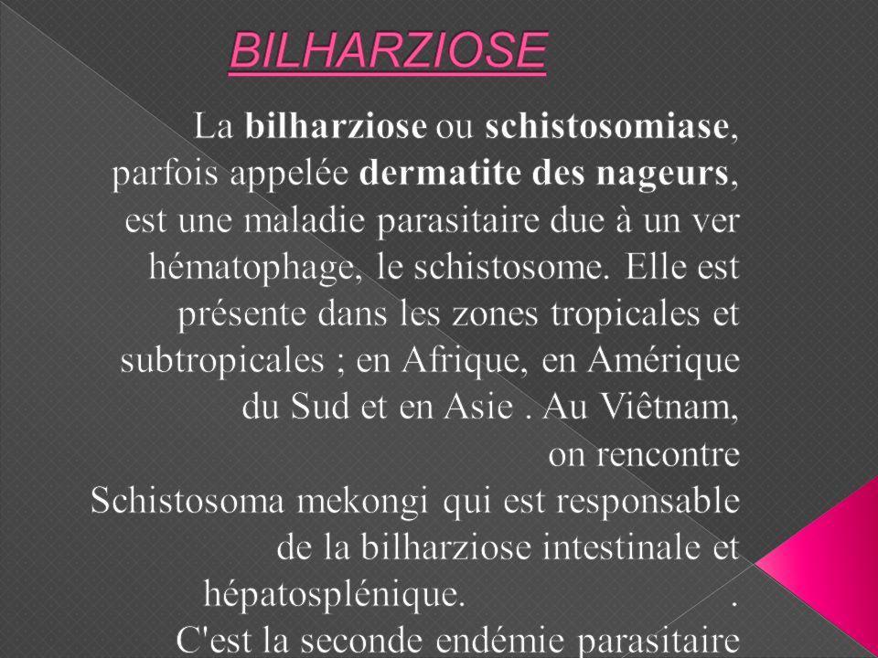 BILHARZIOSE