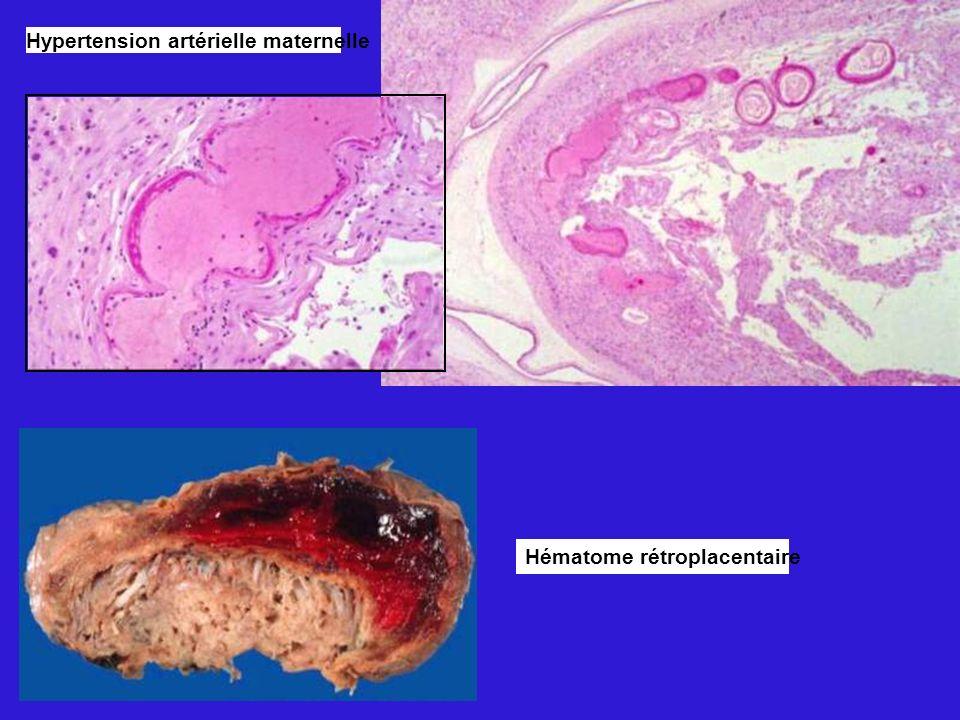 Hypertension artérielle maternelle