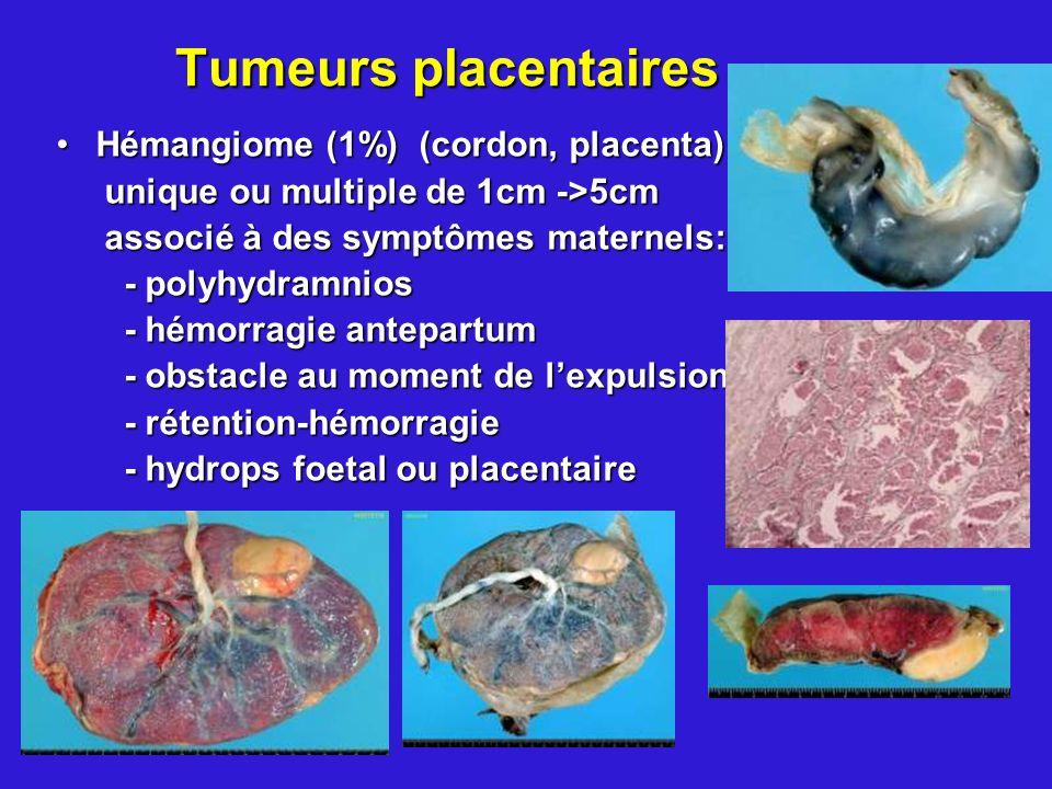 Tumeurs placentaires Hémangiome (1%) (cordon, placenta)