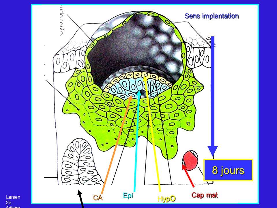 Sens implantation 8 jours Epi Hypo Cap mat Larsen 2è édition CA