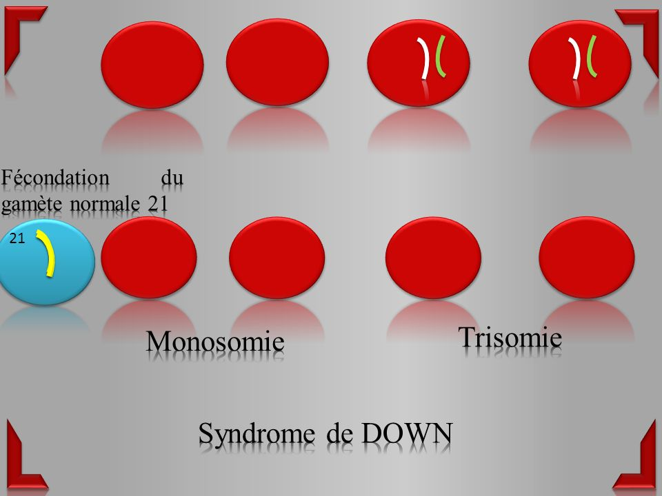 Trisomie Monosomie Syndrome de DOWN Fécondation du gamète normale 21
