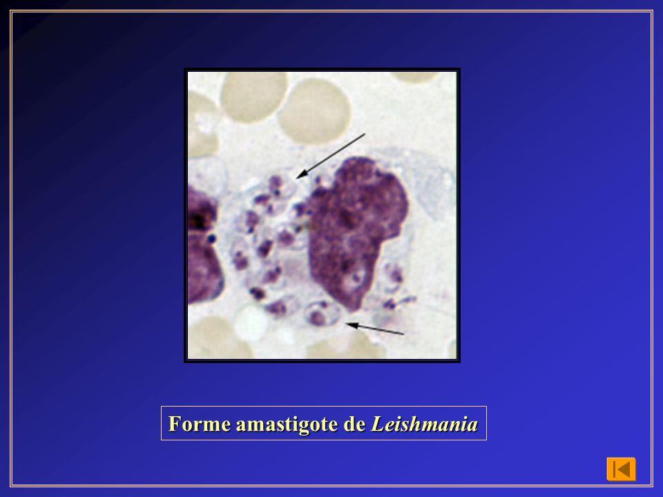 Forme amastigote de Leishmania