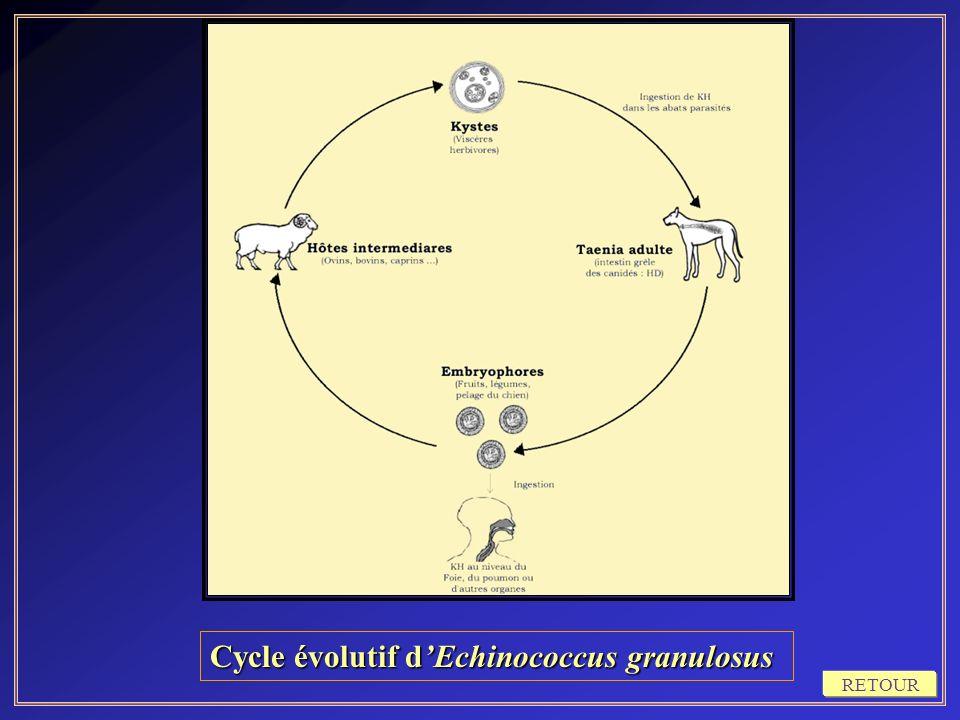Cycle évolutif d'Echinococcus granulosus