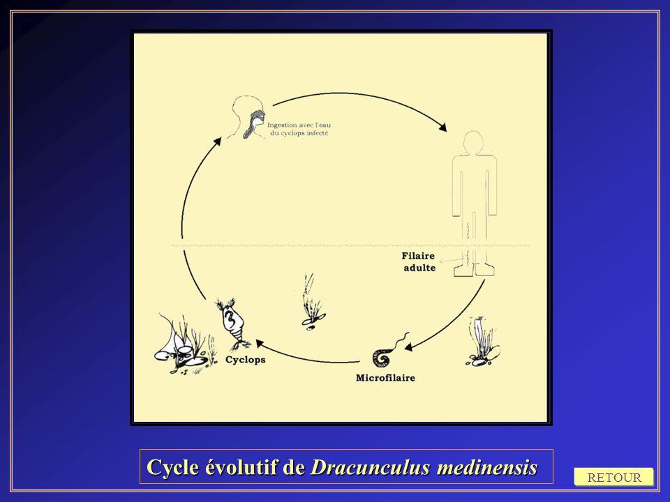 Cycle évolutif de Dracunculus medinensis