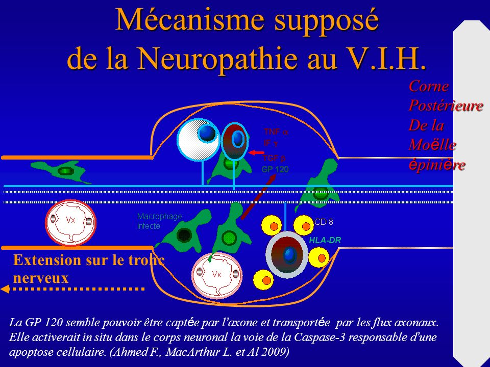 Mécanisme supposé de la Neuropathie au V.I.H.