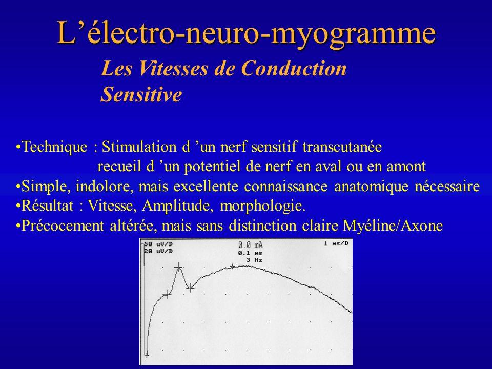 L'électro-neuro-myogramme
