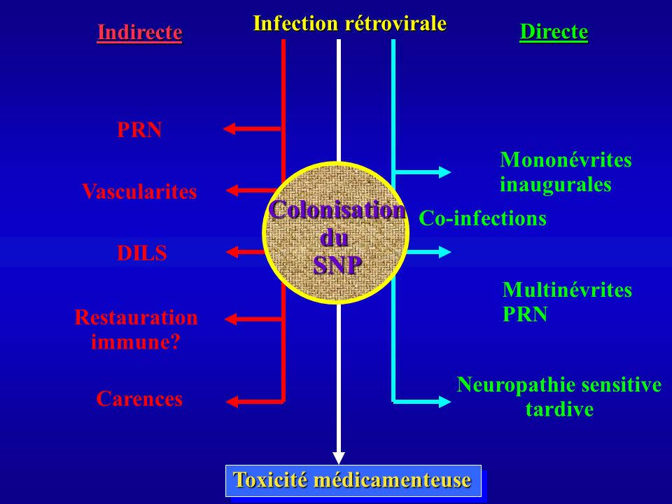 Neuropathie sensitive