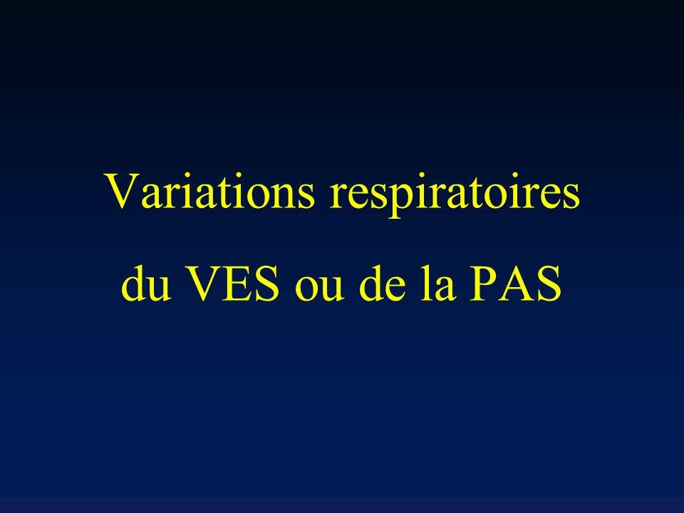 Variations respiratoires du VES ou de la PAS
