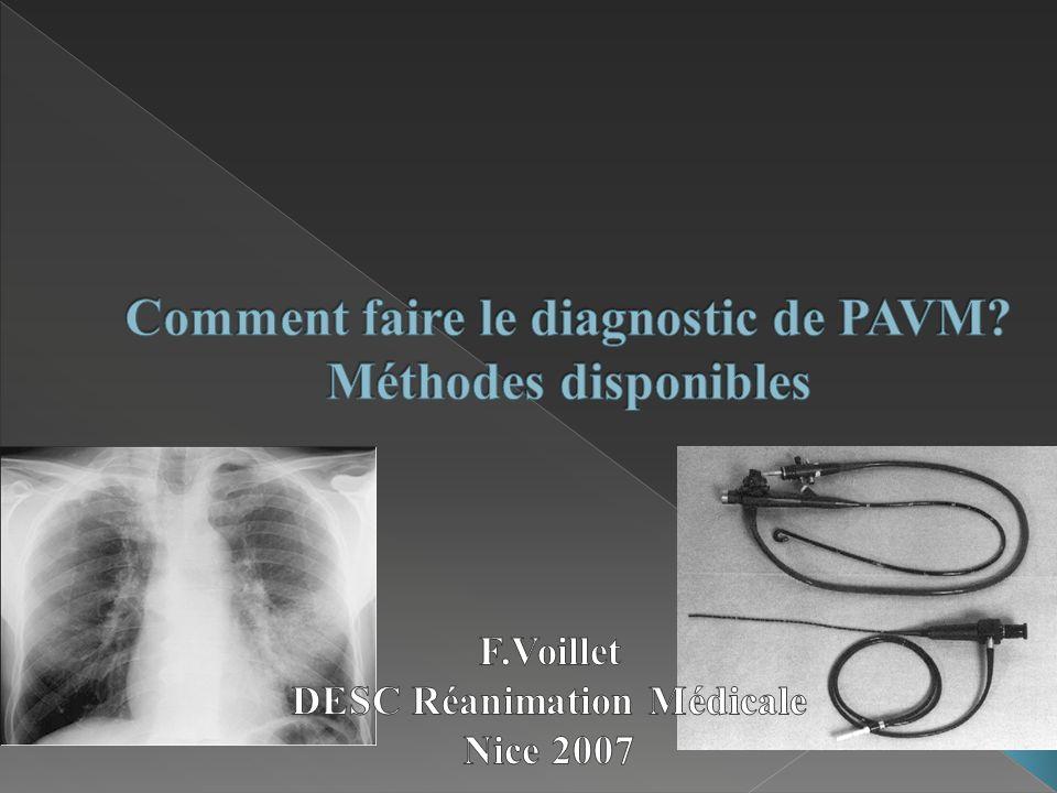 Comment faire le diagnostic de PAVM Méthodes disponibles