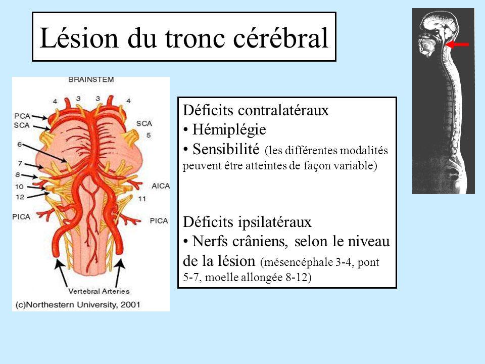 Lésion du tronc cérébral