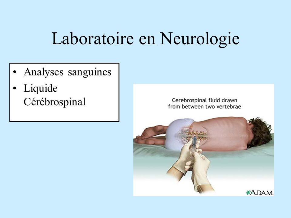 Laboratoire en Neurologie
