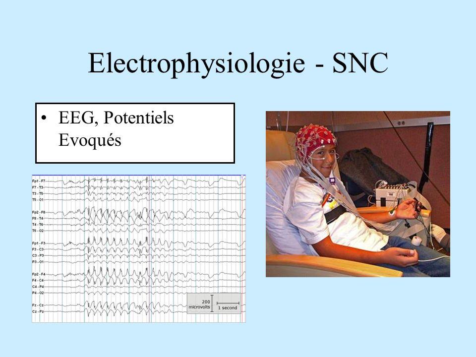 Electrophysiologie - SNC