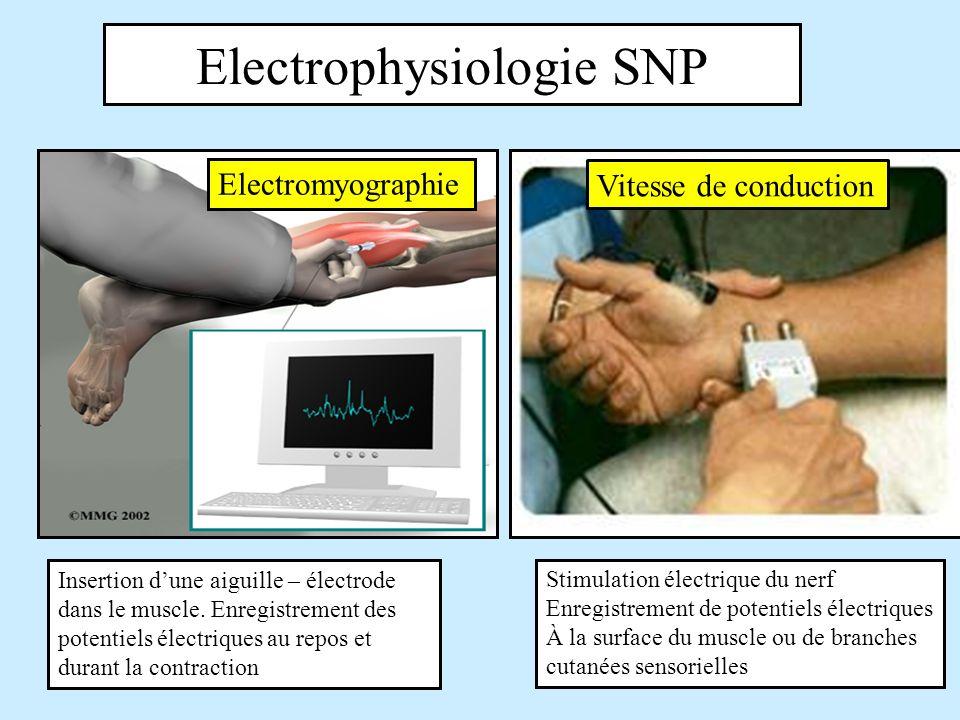 Electrophysiologie SNP
