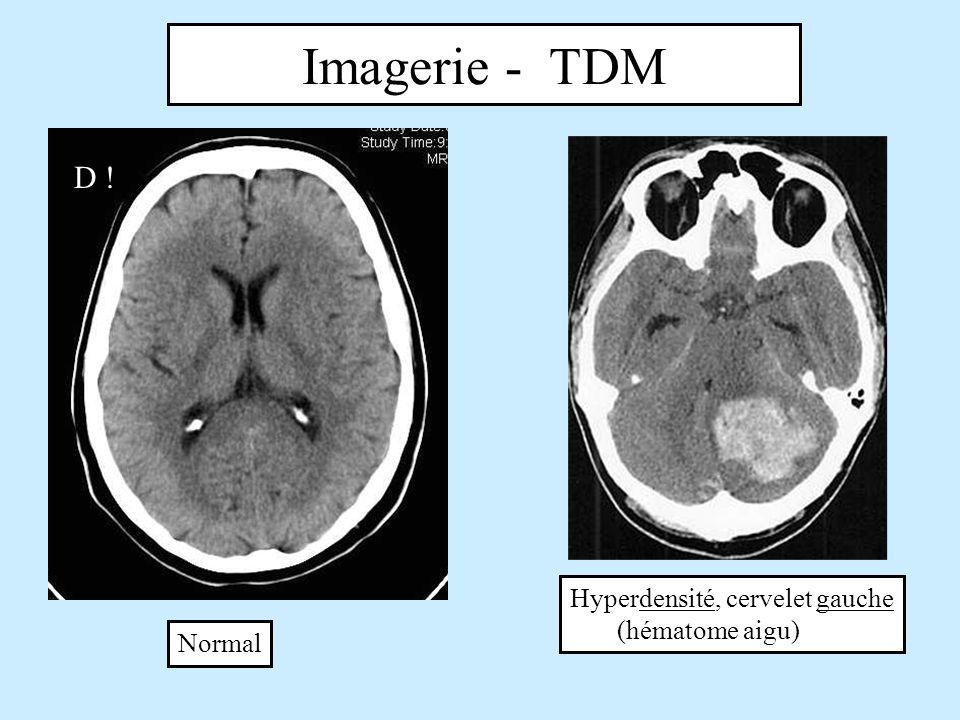 Imagerie - TDM D ! Hyperdensité, cervelet gauche (hématome aigu)