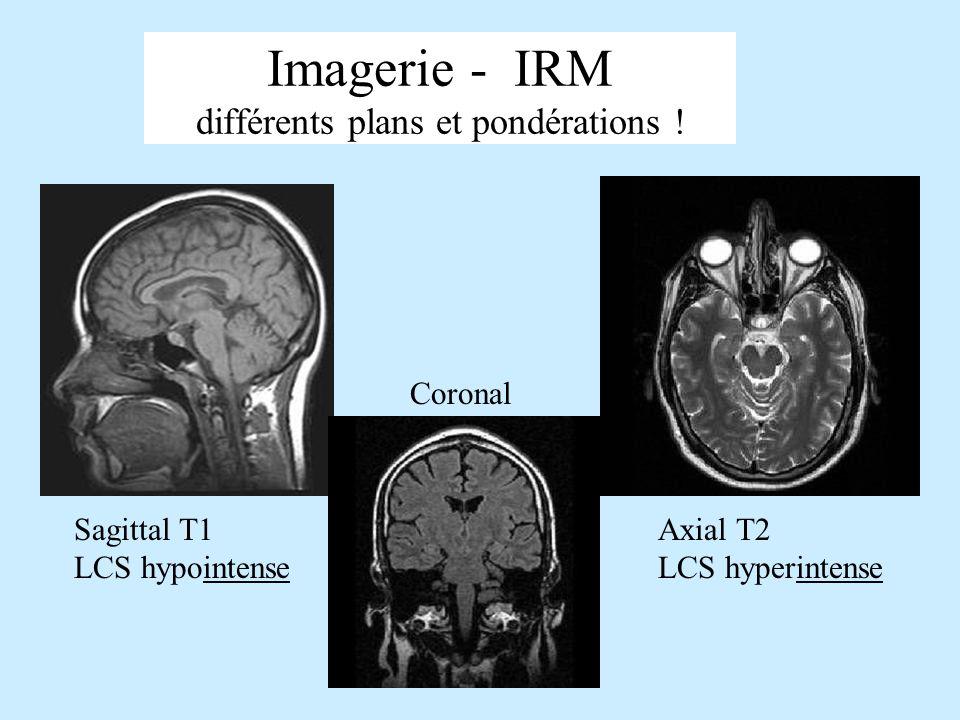 Imagerie - IRM différents plans et pondérations !