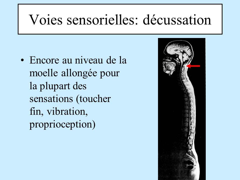 Voies sensorielles: décussation