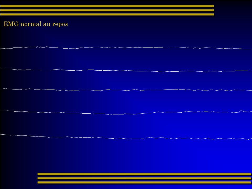 EMG normal au repos