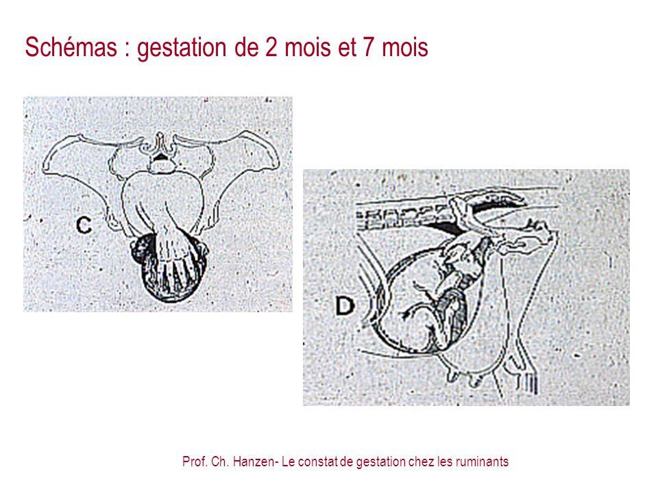 Schémas : gestation de 2 mois et 7 mois