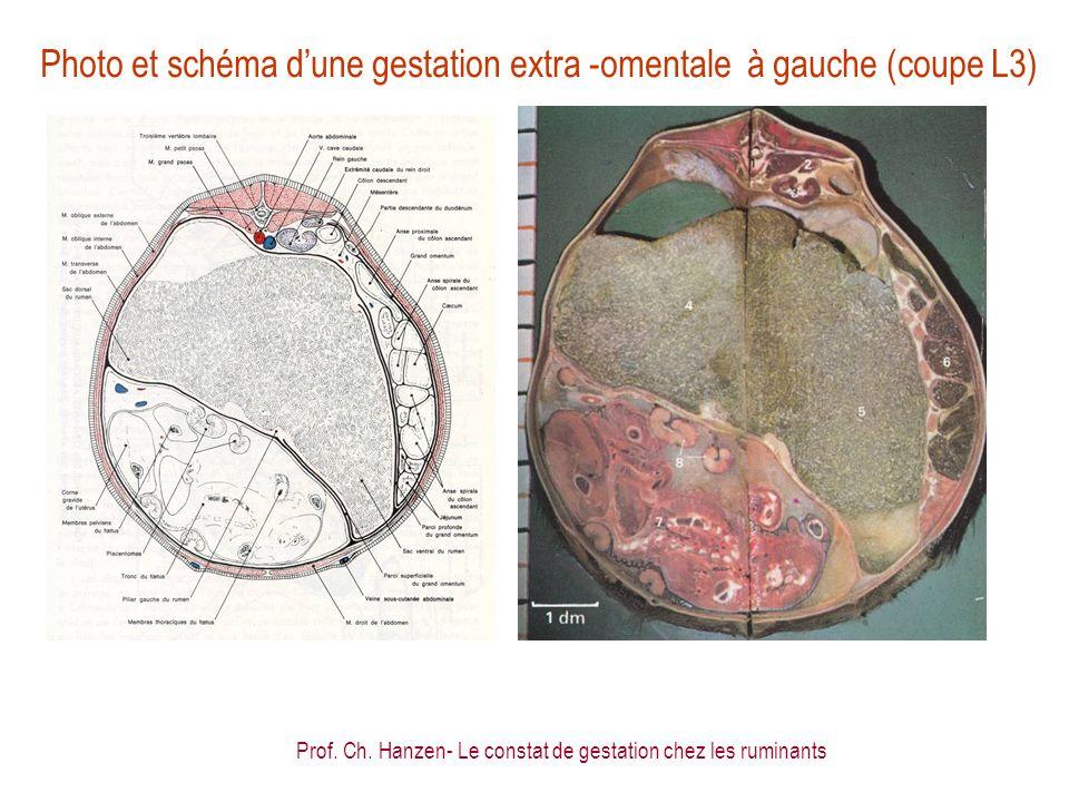 Photo et schéma d'une gestation extra -omentale à gauche (coupe L3)