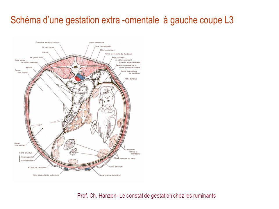 Schéma d'une gestation extra -omentale à gauche coupe L3