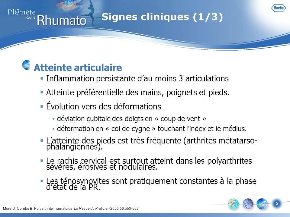 Signes cliniques (1/3) Atteinte articulaire