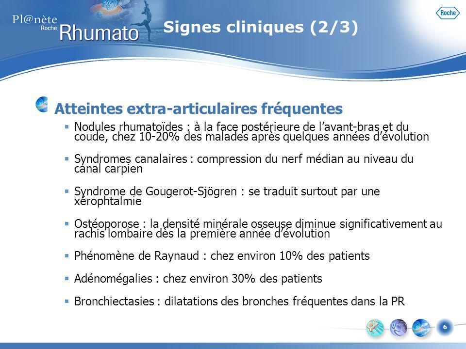 Signes cliniques (2/3) Atteintes extra-articulaires fréquentes