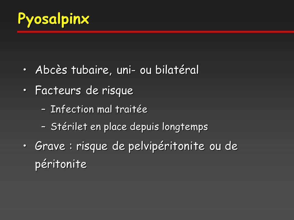 Pyosalpinx Abcès tubaire, uni- ou bilatéral Facteurs de risque