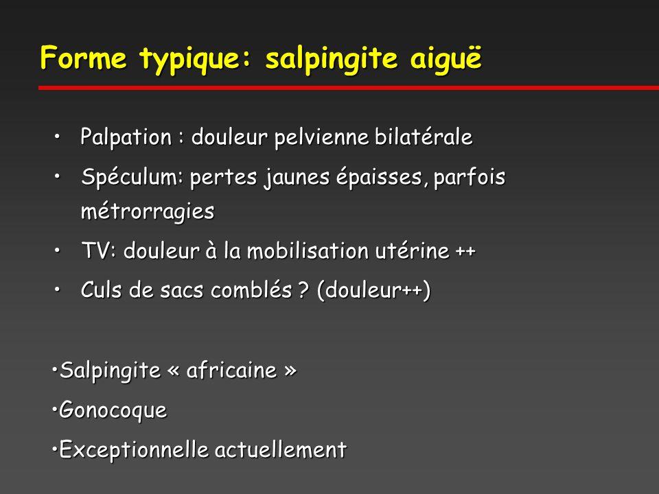 Forme typique: salpingite aiguë